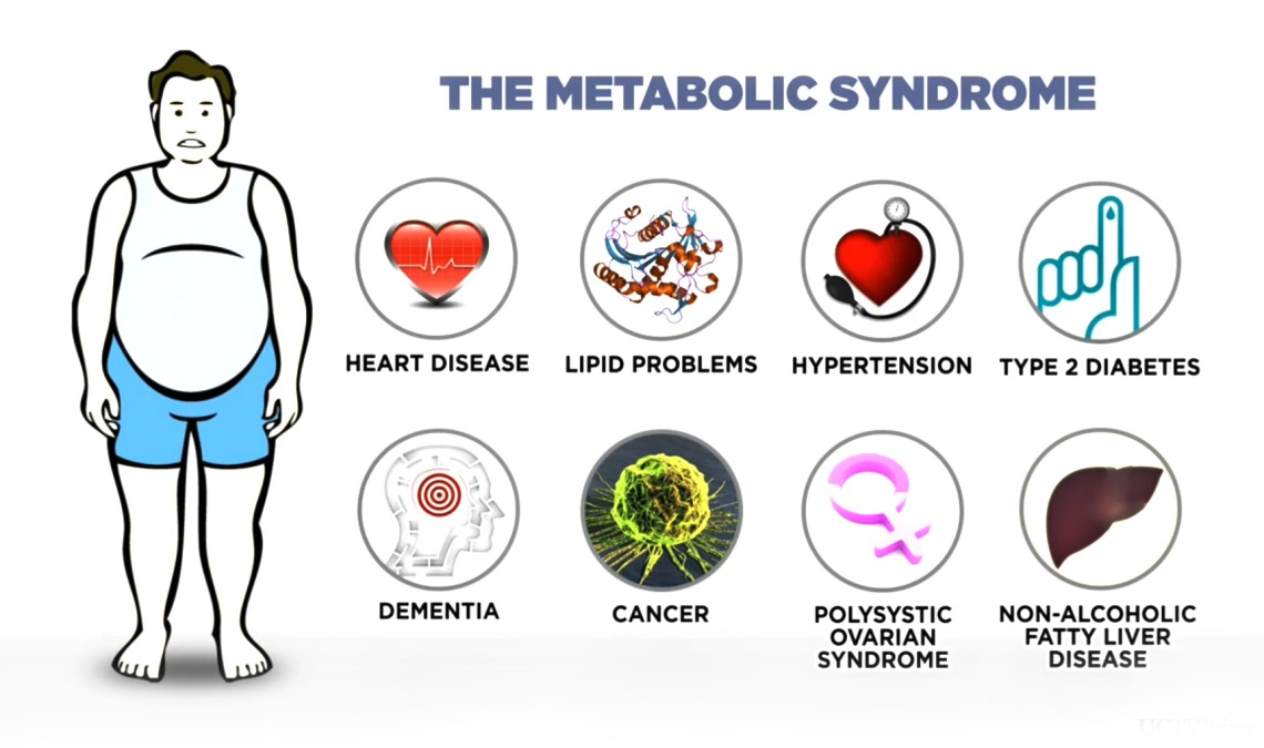 symptoms-metabolic-syndrome-obesity-high-blood-pressure-glucose-intolerance-high-cholesterol-Orlando